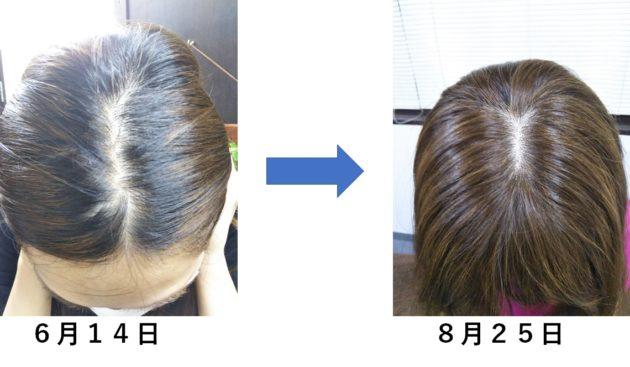 傷んで細く切れやすくなり薄くなっていた髪が綺麗な髪にチェンジ!!
