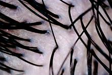 マイクロスコープの拡大写真