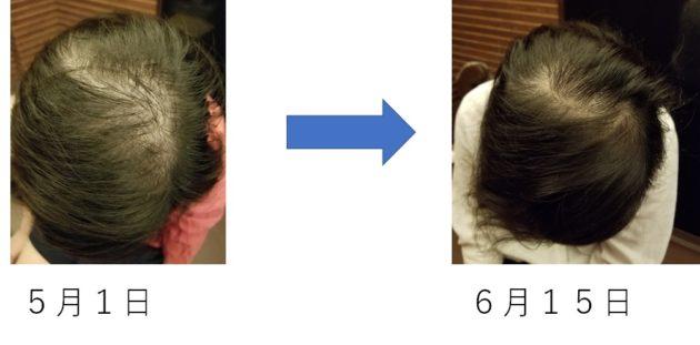 女性薄毛で抜け毛がひどかったけど改善しました!